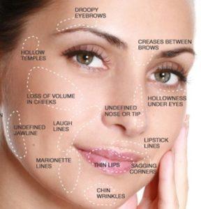 arcplasztika műtét nélkül