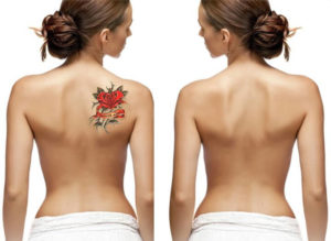 Tetoválás eltüntetése műtéti úton