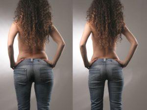zsírleszívás utáni nő hátulról fényképezve