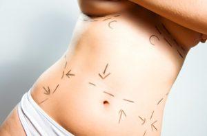 hasplasztika zsírleszívással